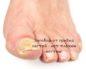 Заговор от грибка ногтей - нет плохим ногтям!