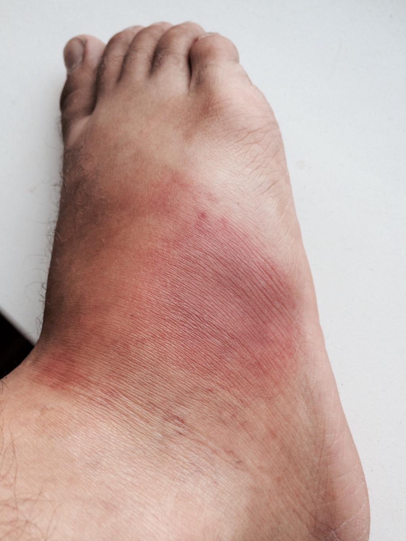 Покраснения на ноге.